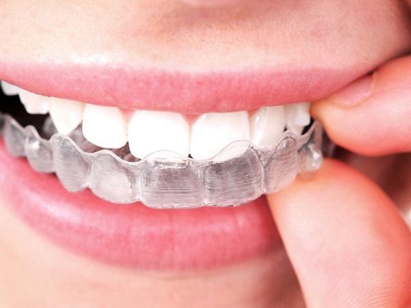 aligen for teeth