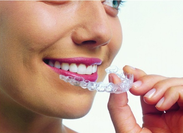 aligen for teeths